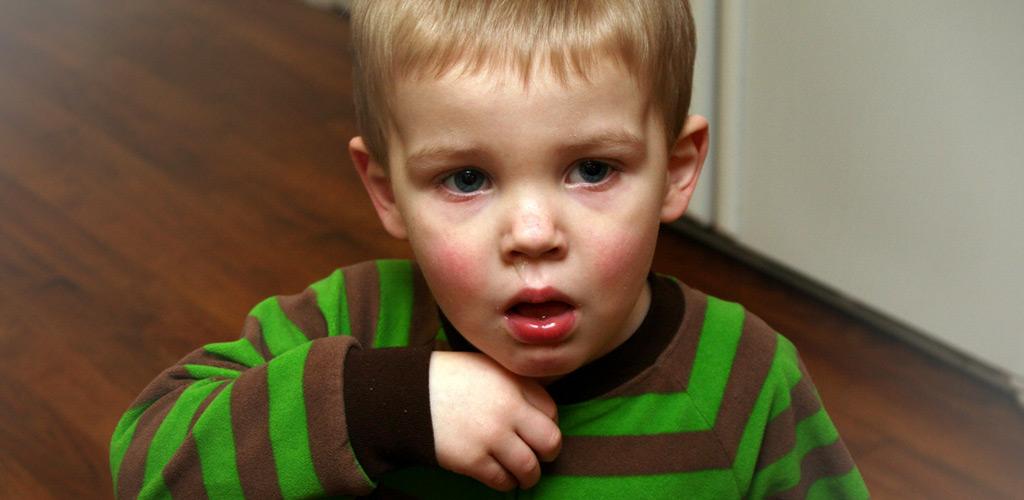 ילד מנוזל משתעל. שיעול בילדים